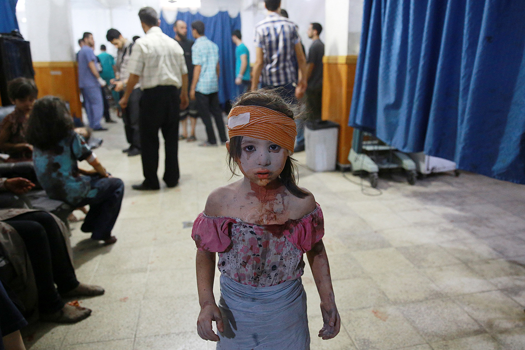 -- AFP PICTURES OF THE YEAR 2015 -- A wounded Syrian girl looks on at a make shift hospital in the rebel-held area of Douma, east of the capital Damascus, following shelling and air raids by Syrian government forces on August 22, 2015. At least 20 civilians and wounded or trapped 200 in Douma, a monitoring group said, just six days after regime air strikes killed more than 100 people and sparked international condemnation of one of the bloodiest government attacks in Syria's war. AFP PHOTO / ABD DOUMANY